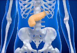 درمان سرطان لوزالمعده با داروی سرطان سینه