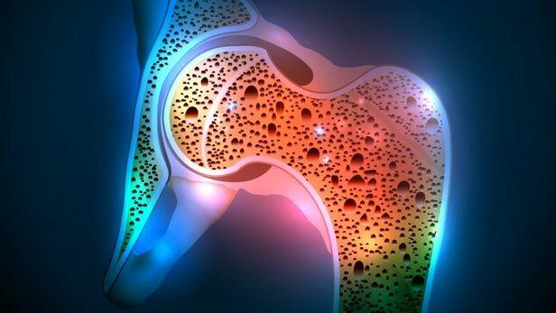 علائم سرطان مغز استخوان را بشناسید + درمان