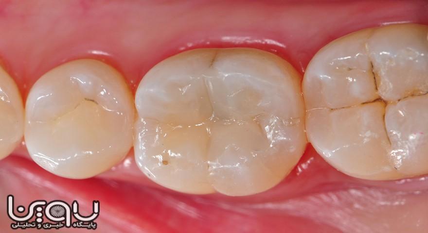 «عفونت دندان» باعث آسیب به چشم و مغز می شود